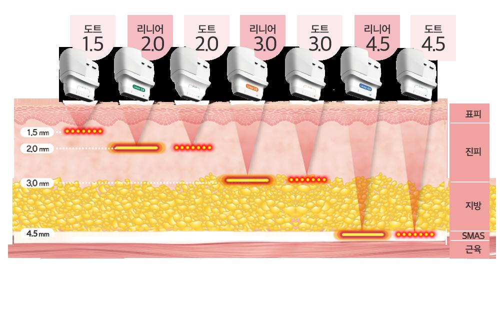 카트리지별 에너지전달 피부층